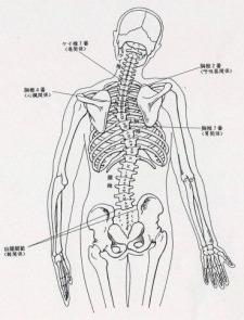 骨格変形図